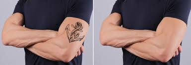 tatoo removal in pune